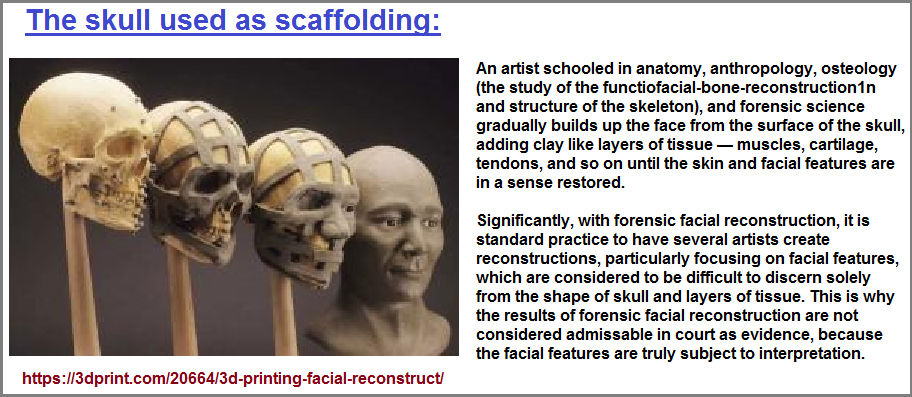 The human skull labeled as scaffolding