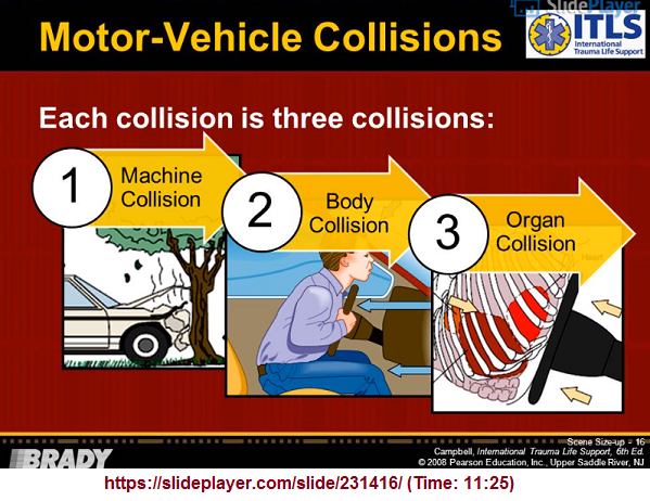 Three types of collision in a veicle crash
