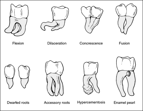 Variations in tooth roots