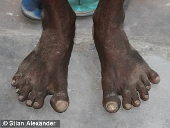 six toed person